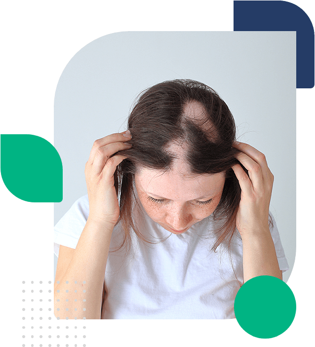 Patient showing her suffering of hair-loss
