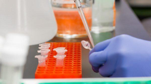 Neuro Biogenic Amines Comprehensive Urine