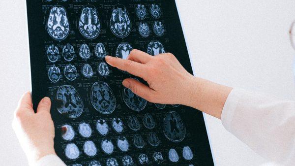 Schizoprenia Sensor
